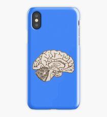 hemisected brain iPhone Case