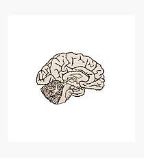 hemisected brain Photographic Print