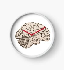 hemisected brain Clock
