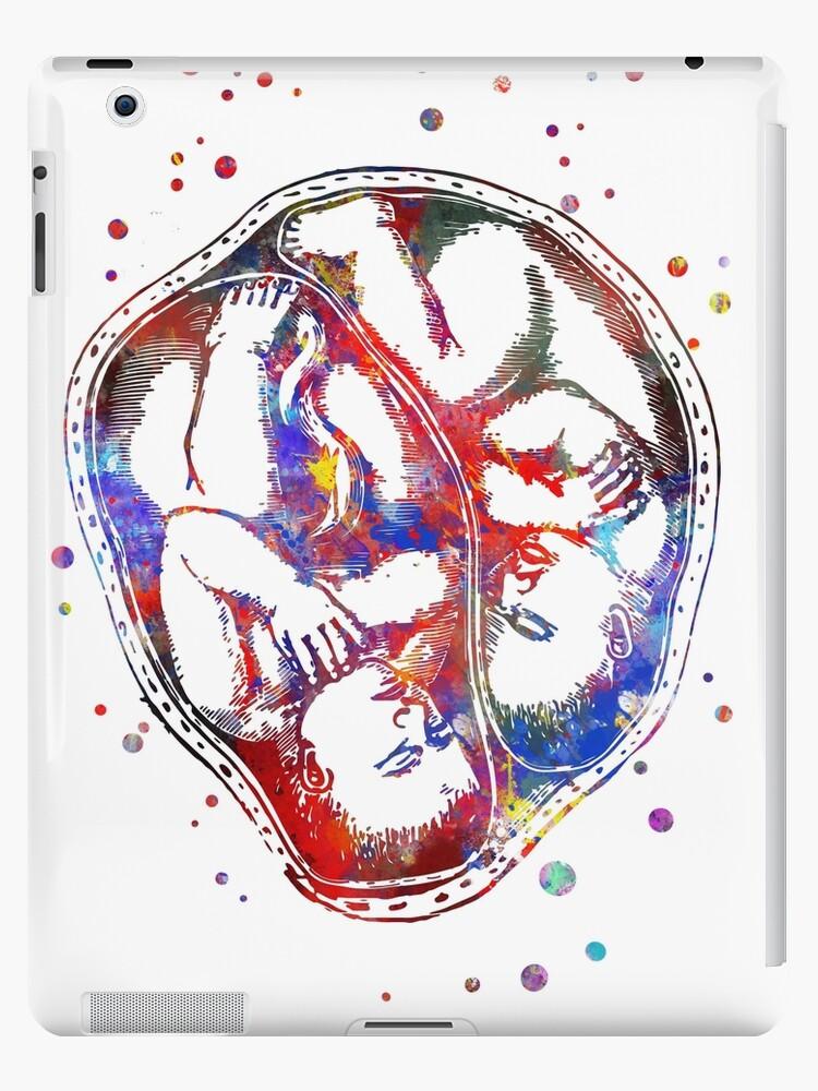 'Twins in cephalic position, pregnancy, fetus, foetus, baby's development'  iPad Case/Skin by Rosaliartbook