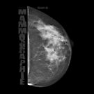 Mammographie - Screening by fuxart