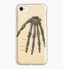 Victorian Steam Punk Anatomy iPhone Case/Skin