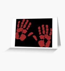 Guilty Prints Greeting Card