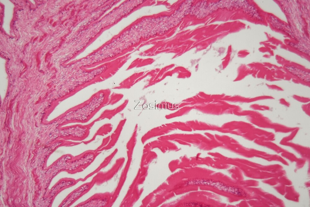 Hydatide cyst of cyclophyllid tapeworm (Echinococcus), a parasite on humans and animals. by Zosimus