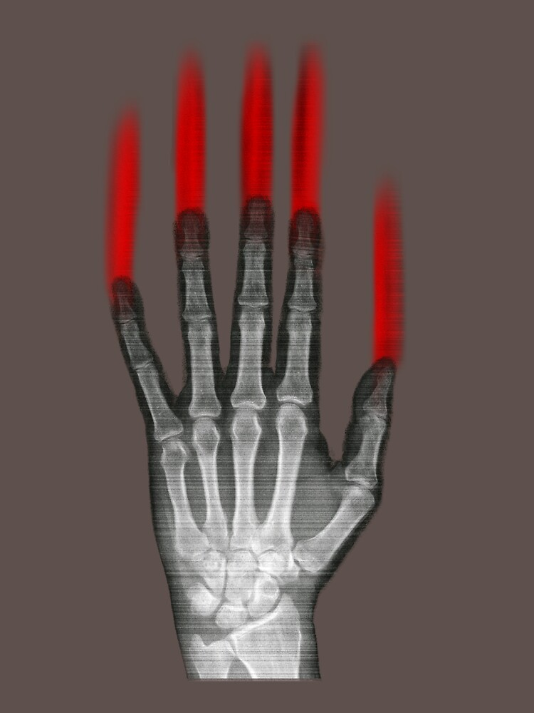 Zombie Hand! by amorphousbeing