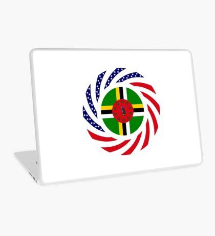 Dominica American Multinational Patriot Flag Series Laptop Skin