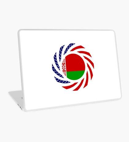 Belarusian American Multinational Patriot Flag Series Laptop Skin