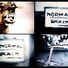 «Normal Brain, Abnormal Brain» de Luis Contreras Flores