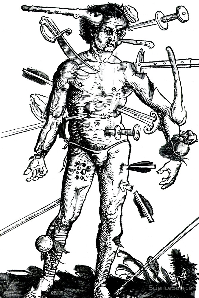Wounded Man by ScienceSource