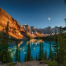 Moraine Lake - Canada by Greg Earl