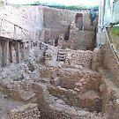 Excavation by zahnartz