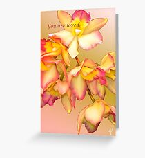 YOU ARE LOVED (CARD 2036) Greeting Card