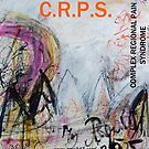Dancing in My Mind-CRPS (Complex Regional Pain Syndrome) awareness design by ROSEMARY EAGLE