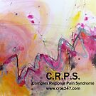 Zapped-CRPS awareness design by ROSEMARY EAGLE