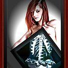 X-ray girl by David Knight