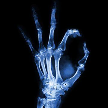 X-Ray Okay by realmatdesign