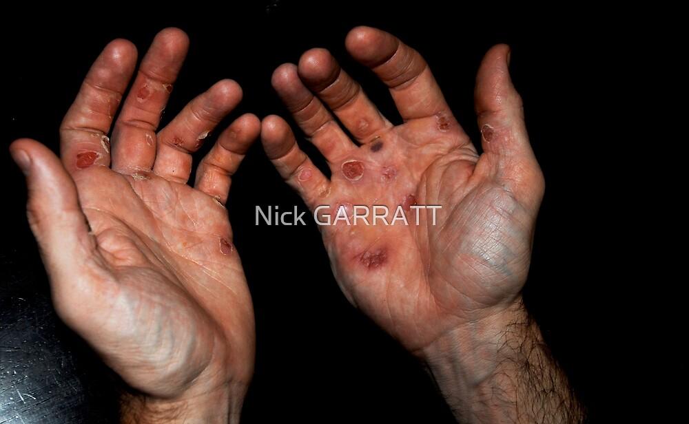 Rowers hands by Nick GARRATT