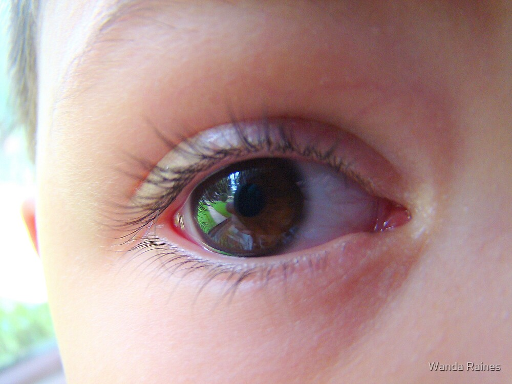 Reflection Of Outdoors In His Eye by Wanda Raines