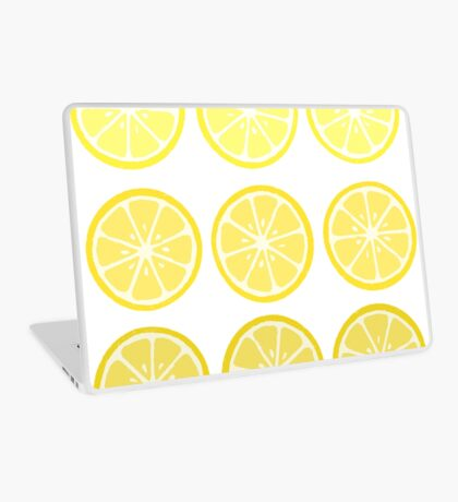 Gradient Lemons Laptop Skin