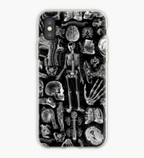 Human Anatomy Black Print iPhone Case