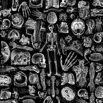 Human Anatomy Black Print by adamcampen