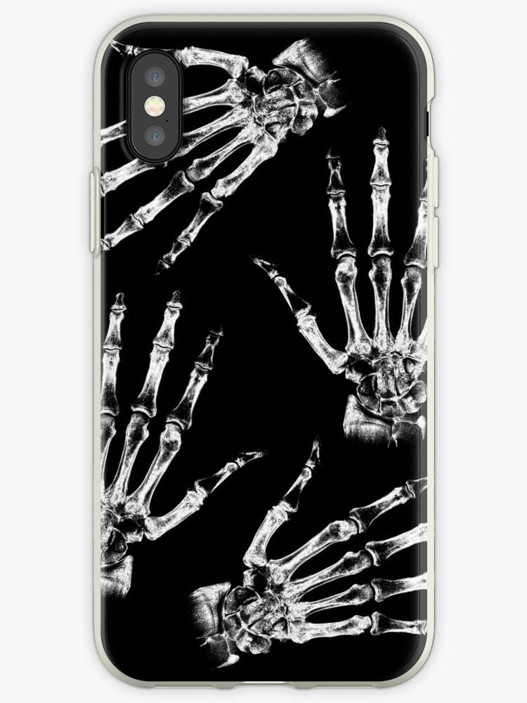 Skeleton Hands by adamcampen