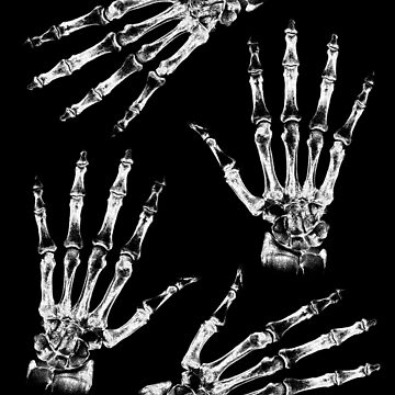 Skeleton Hands by adamcampen