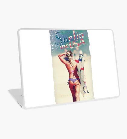 TASTY™ Surfer Girl Laptop Skin