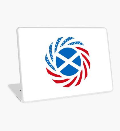 Scottish American Multinational Patriot Flag Series Laptop Skin