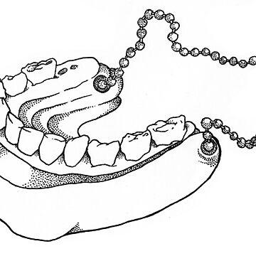 Prosthetic Jaw by MackVanLobster