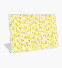 Pink Lemonade Laptop Skin