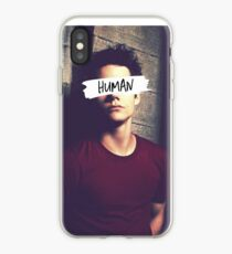 Stiles Stilinski | Human iPhone Case