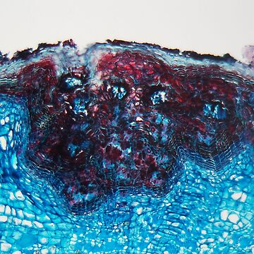 Blue colored cells of a plant stem with a disease under a microscope. by Zosimus