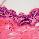 Amphibian skin with ulcer under a microscope by Zosimus