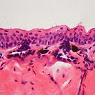 Cells of an amphibian skin with ulcer under a microscope. by Zosimus