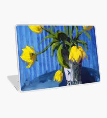 Yellow Tulips with Blue Laptop Skin