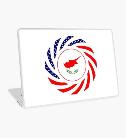 Cypriot American Multinational Patriot Flag Series Laptop Skin