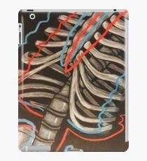 bipolare Knochen iPad-Hülle & Klebefolie
