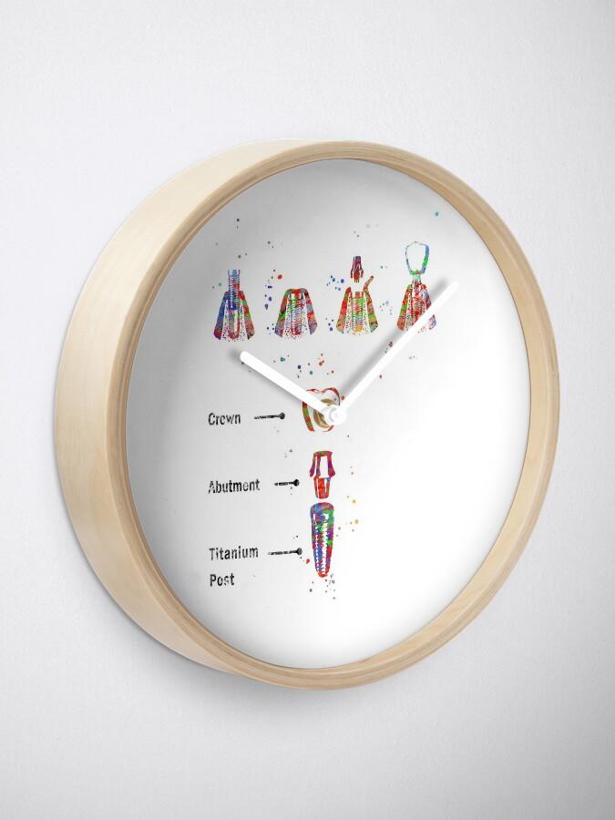 Alternate view of Dental implant procedure, dental anatomy, dental implant Clock