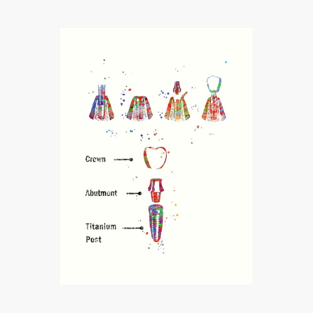 Dental implant procedure, dental anatomy, dental implant Art Print