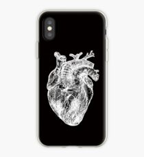 My White Heart iPhone Case
