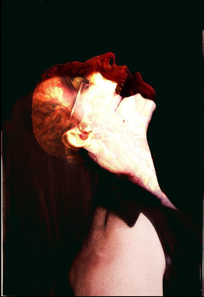 Cerebral Palsy by Adam Brunckhorst
